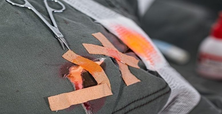 wound QE